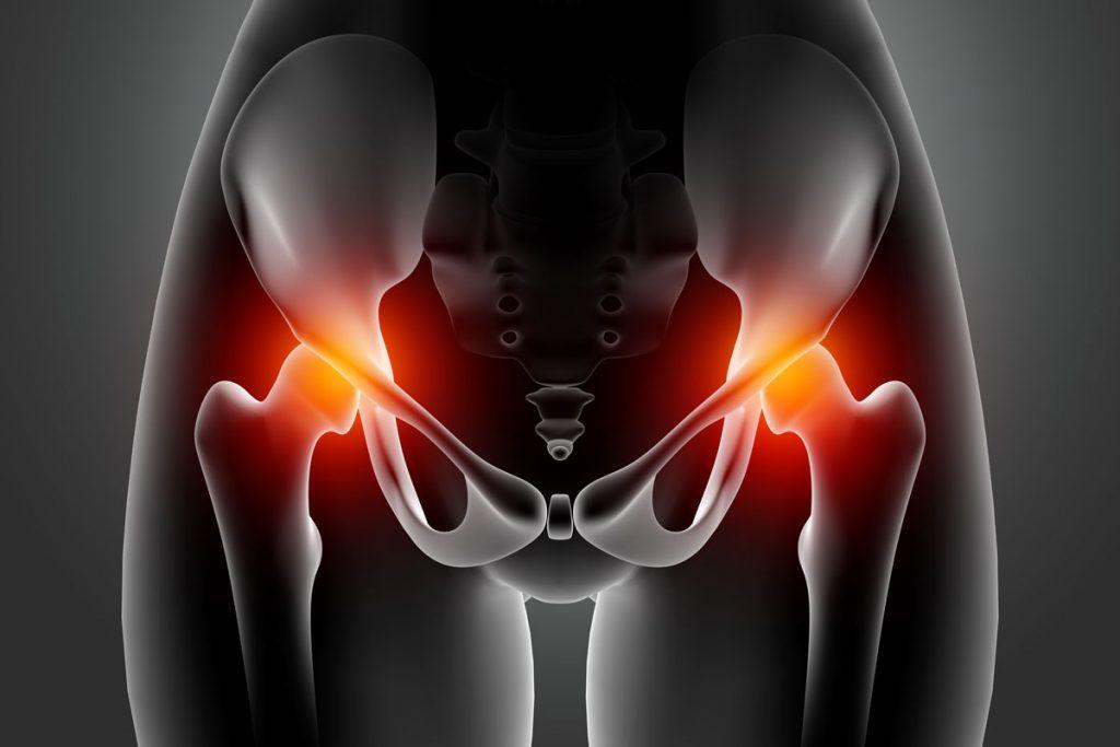Alleviare il dolore allanca da artrite. Anca Da Artrite Per Alleviare Il Dolore