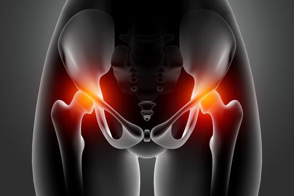 Artrosi d'anca: cos'è e come si cura