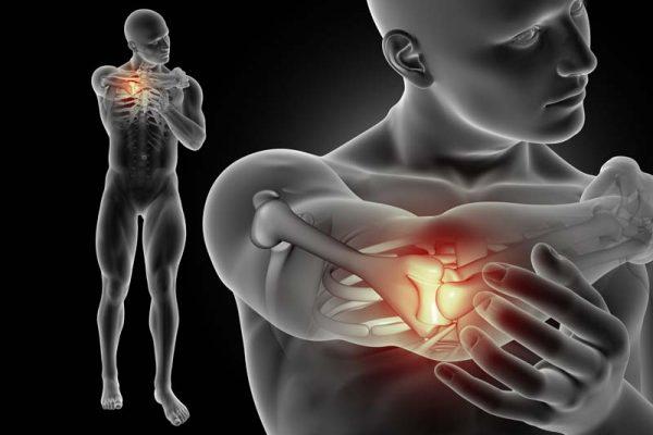 Gomito del tennista e osteopatia